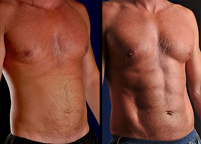 One of the best liposuction before and after photographs we have ever taken.