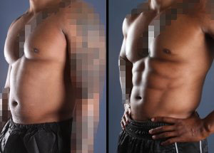 Outstanding results of one patient's liposuction seen before and after the procedure.