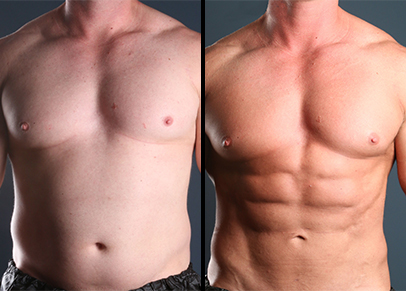 The amazing results of stomach liposuction seen before after this patient's treatment commensed.