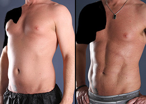 Some of the best male liposuction before and after photos we've ever seen at this office.
