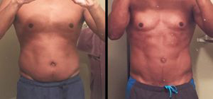 Fantastic liposuction before and after pictures you have to see to believe.