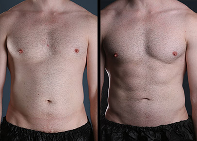 Great results with liposuction before and after pictures.