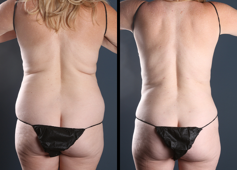 Some of the most accurate stomach liposuction before and after pictures you'll find.