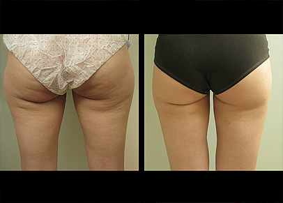 Before and after lipo treatment on the abdomen with Dr. Jason Miller