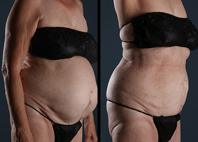 Amazing arm liposuction before and after results shown by one of our favorite patients.