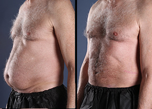 A wonderful liposuction before and after comparison of one patient's results.