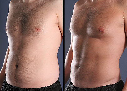 Immensily gratifying liposuction before and after result as shown by one of our most improved patients.