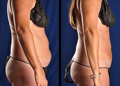 Photographs of a woman who underwent buttocks liposuction shown before and after surgery.