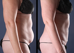 Some of the better liposuction before and after pictures we've ever taken.