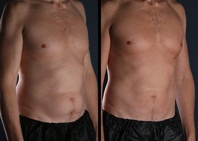A picture depicting back liposuction before and after the procedure.